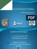 FEOCROMOCITOMA 2