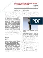 Supraglottoplasty for laryngomalacia.pdf