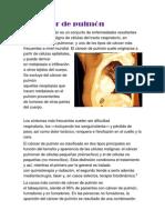 cancer del pulmon.docx
