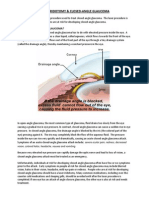 Laser Iridotomy and Glaucoma