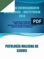 Curso de Reforzamiento Ginecología - 2013 Cancer de Cervix