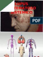 LUPUS ERITEMATOS SISTEMICO_UNC_CHOTA