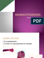 Neurocisticercosis presentacion