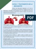 Definición, Causas y Tratamiento de La Bronquitis