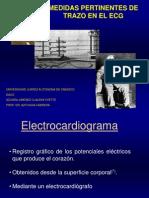EKG (Como Leerlo)