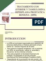 Guia Para Hiperplasia Prostatica Benigna