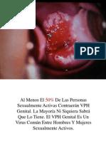Virus Papiloma Humano, Tratamiento Del Papiloma Humano, Sintomas de Vph, Verrugas Genitales