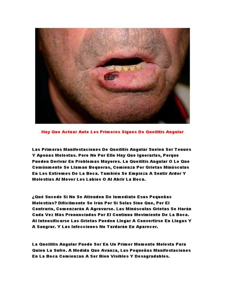 grietas linear unit solfa syllable comisura de los labios remedios