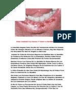 Porque Salen Boqueras, Queilitis Exfoliativa, Tratamiento Estomatitis, Tratamiento Para Labios