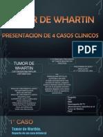 Tumor de Whartin Expo