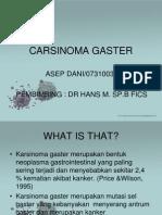 Carsinoma Gaster