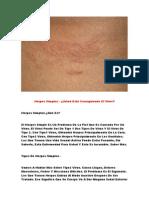 Remedio Para Herpes, Herpes Simple Tratamiento, Remedio Casero Para Herpes Labial
