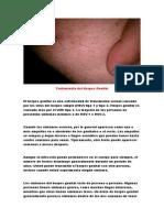 Herpes Labial Remedios Caseros, Cura Para Herpes, Herpes Labial Remedio, Herpes Bucal Causas