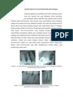 Pengaruh Faktor Iatrogenik Dalam Perawatan Endodontik Pada Jaringan Periodontal