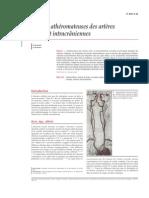 Lésions Athéromateuses Des Artères