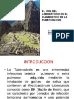 14. Diagnóstico de Tuberculosis