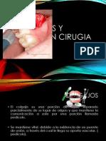 expodecirugiasuturasycolgajos4semestre1-130409143137-phpapp02