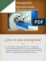 Que es la tomografía