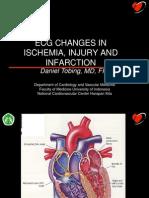 ECG PLD Ischemia and Infarction (Daniel)