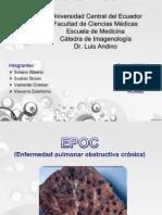 TEMA 10 EPOC.pptx
