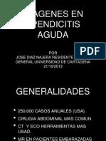 Apendicitis 14
