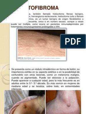 hemangioma fusocelular