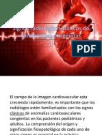 Signos Radiológicos Clásicos de Cardiopatías Congénitas