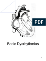 Basic Dysrhythmias HR Online Version