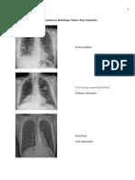 Gambaran Radiologis Tumor Paru Sekunder