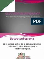 Electrocardiograma Expo
