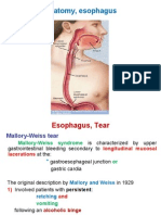 Esophagus, Tear
