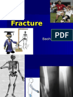 fracture01