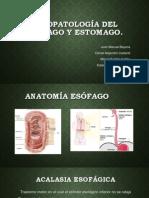 Fisiopatología Del Esófago y Estomago.