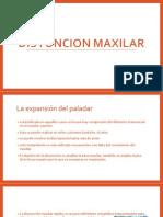 DISYUNCION MAXILAR