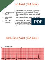 Blok Sino Atrial ( SA Blok )