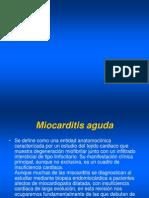 16 Miocarditis aguda