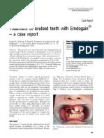 Avulsed Teeth
