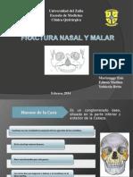 Fx Nasal y Malar