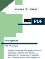 Radiología del Tórax