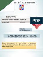 Carcinoma Uro Teli Al