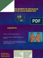 Artopatía Por Depósito de Cristales de Pirofosfato de Calcio