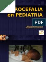 HIDROCEFALIA PEDIATRIA