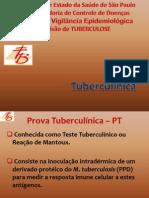 Aula05dots Prova Tuberculinica