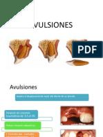 Avulsion Es