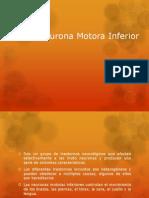 Sx Neurona Motora Inferior