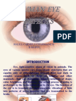 Eye Defect