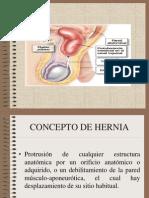 Hernia Inguinal 120912212802 Phpapp01