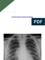 Bronchopulmonary Malformations