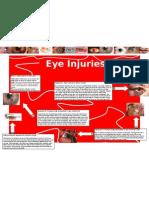 Eye Injuries- Poster