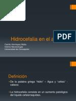 10. Hidrocefalia en El Adulto